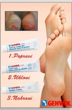 GEHWOL paket za izrazito suvu kožu stopala